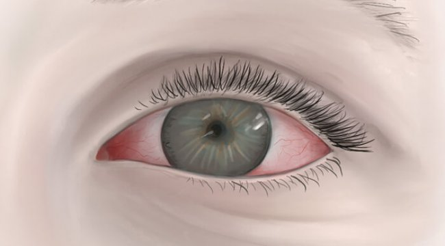 Göz kanlanması neden olur ve nasıl geçer?